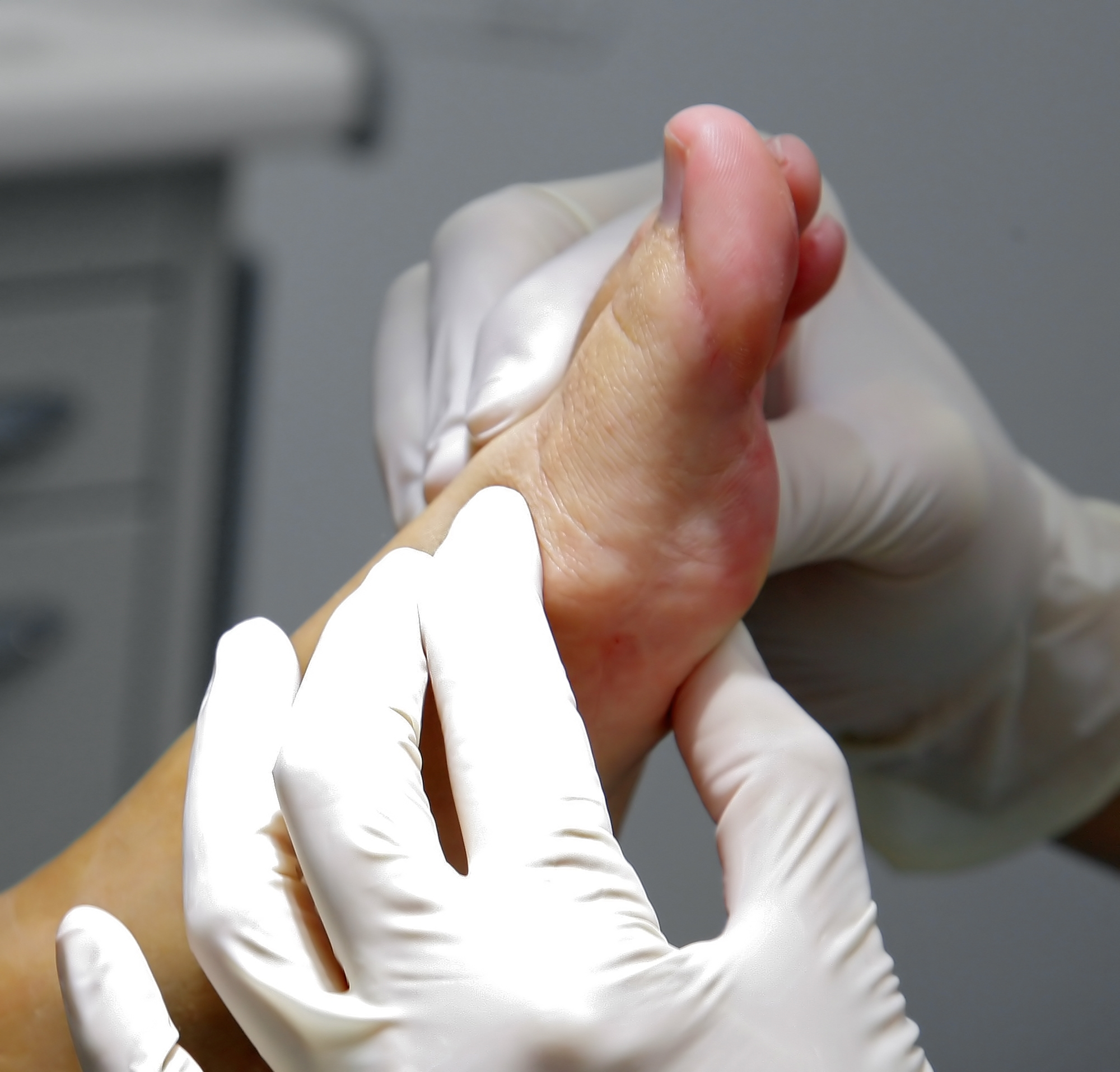 SESAMOIDITIS: FRACTURA DE ESTRÉS VERSUS OSTEONECROSIS