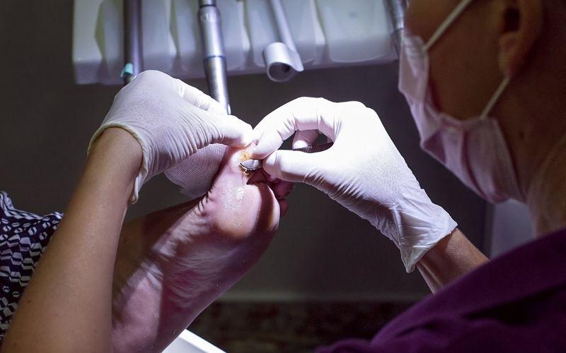 quiropodia - limpieza podal